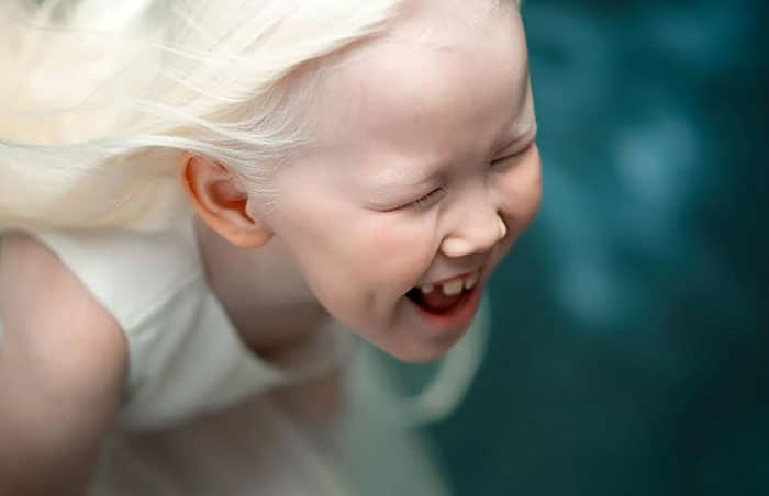 biancaneve-siberiana-8-anni-albinismo
