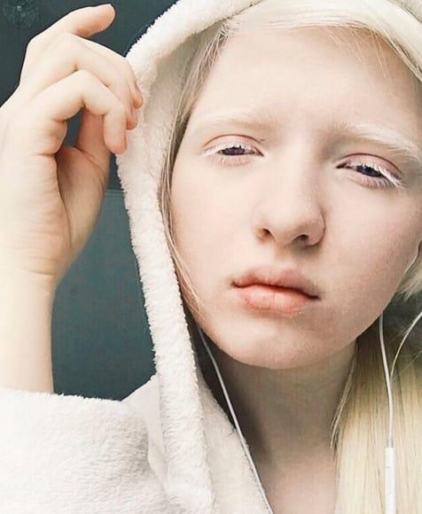 modelli, albinismo
