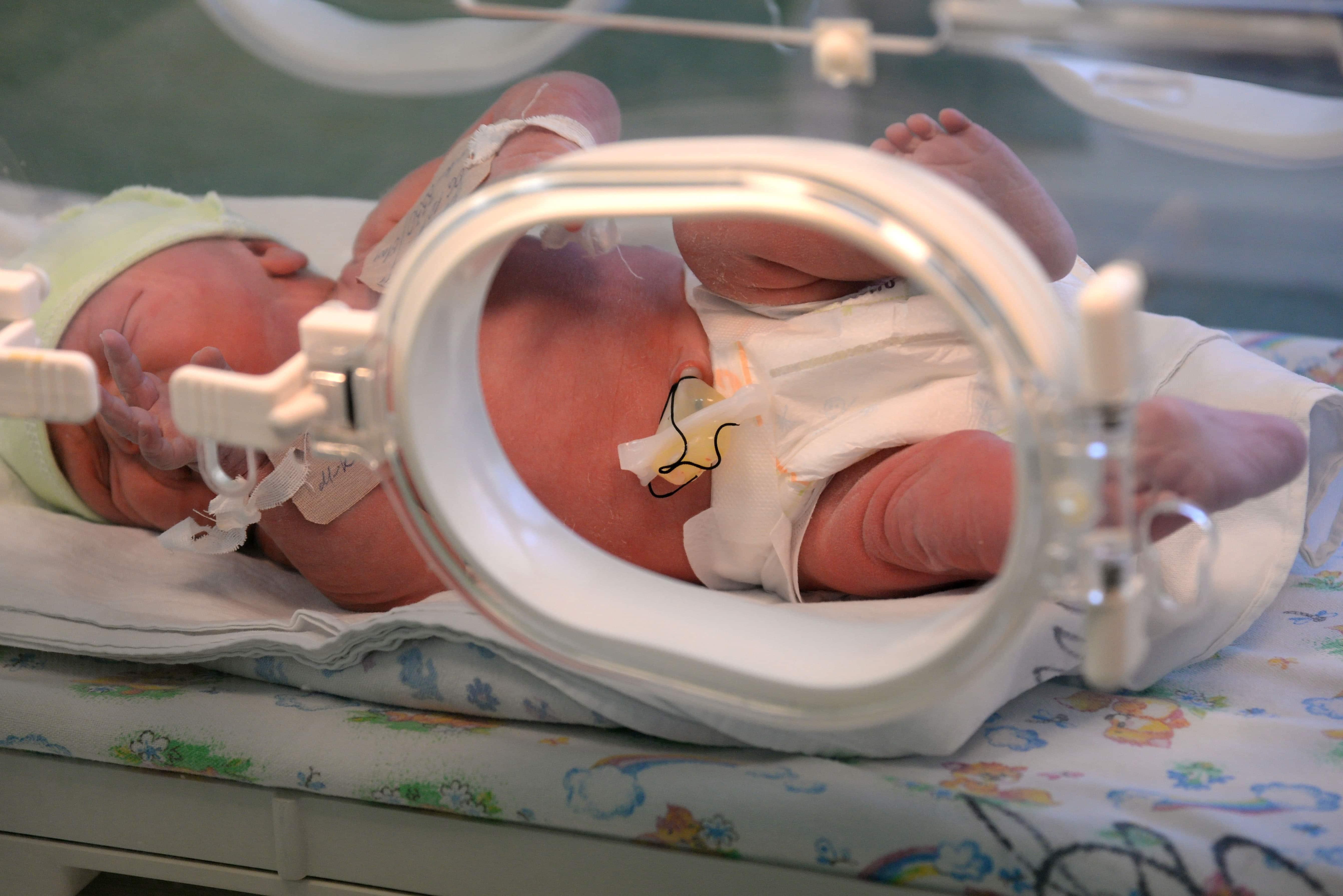 Gb, bimba nasce con il cuore fuori dal petto e si salva