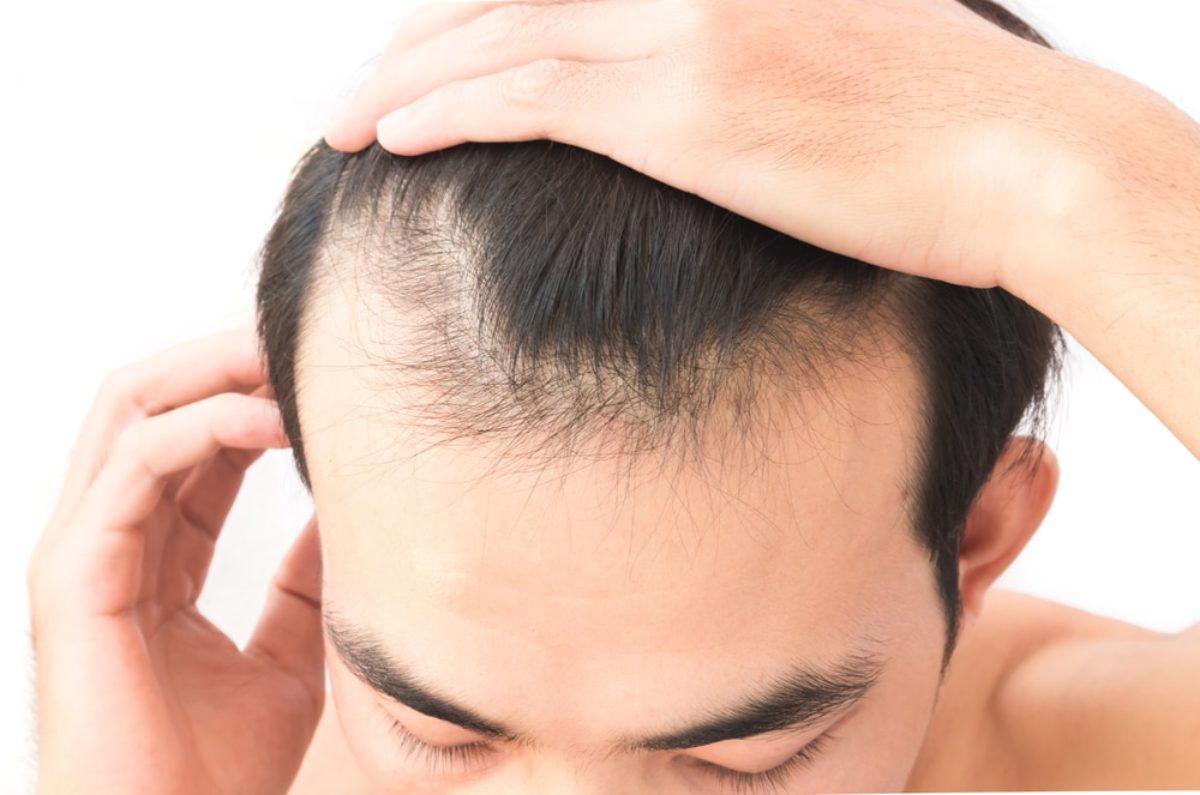 Cura contro caduta capelli uomo