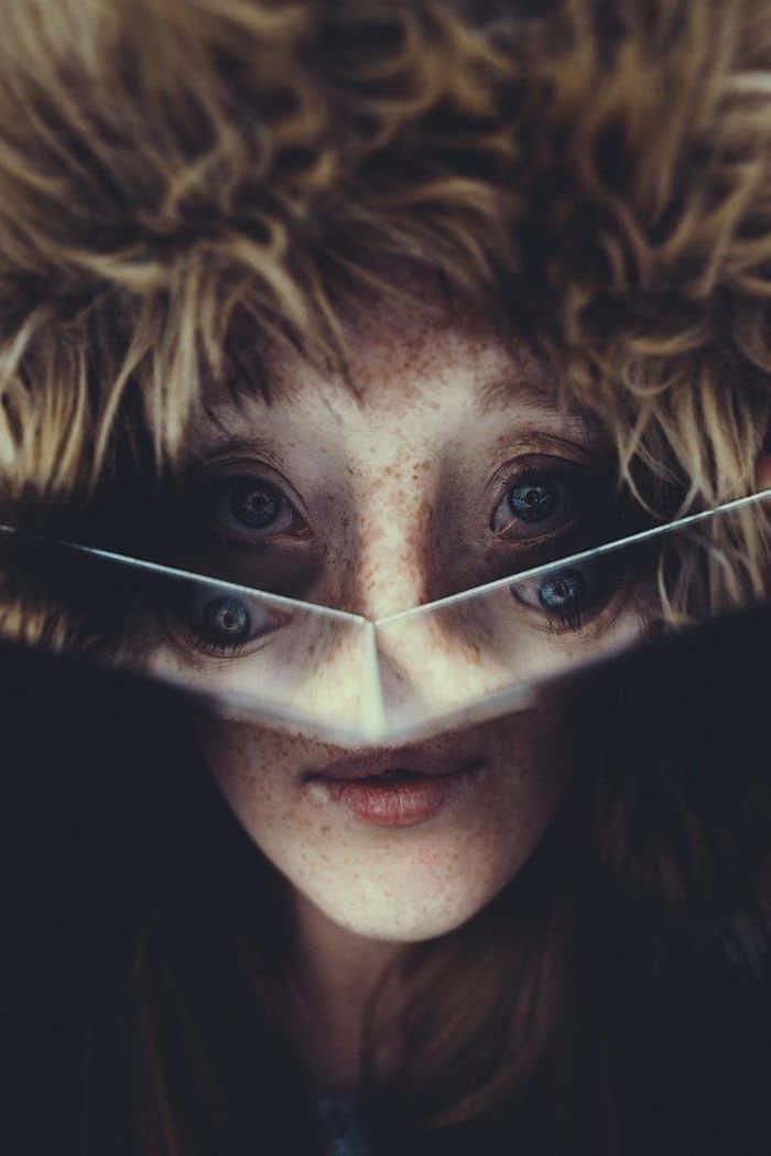 ragazza malformazione facciale