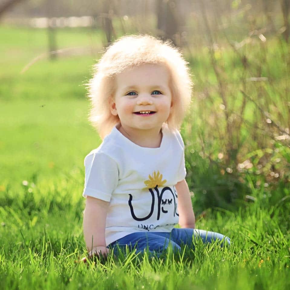 sindrome capelli impettinabili