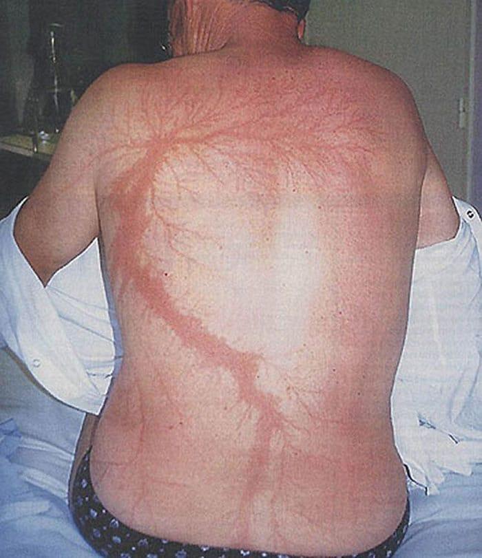 persone colpite da un fulmine