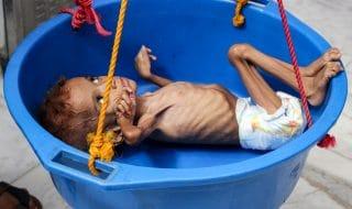 Yemen bambini carestia
