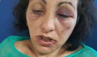 calabria donna torturata