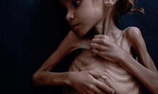 bambina simbolo guerra yemen morta