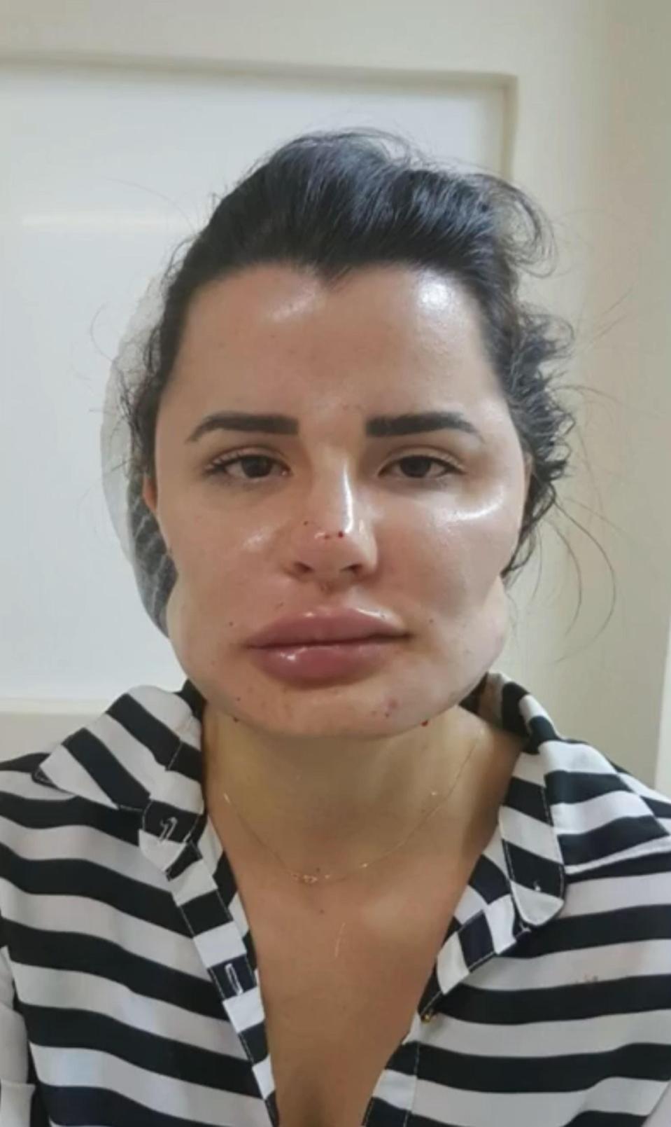 deformati chirurgo plastico brasile