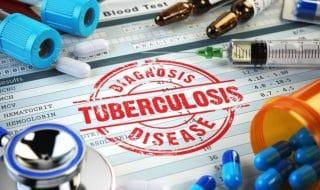 tubercolosi maestra contagia alunni