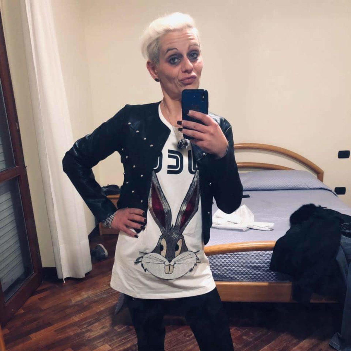foto di bare e 800 chiamate al giorno: le persecuzioni della stalker che ha sfregiato l'ex con l'acido .