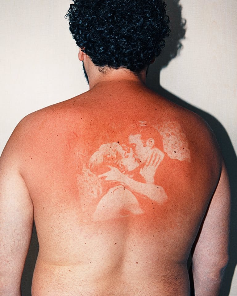 sunburn tattoo