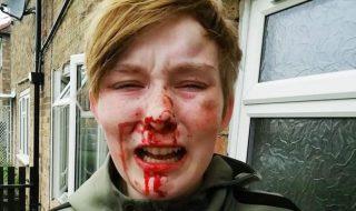 Lesbica picchiata Inghilterra