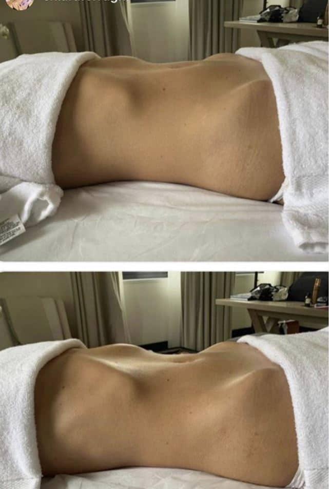 massaggi chiara ferragni