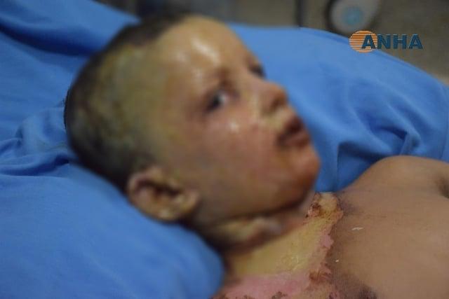 bambino siria turchia