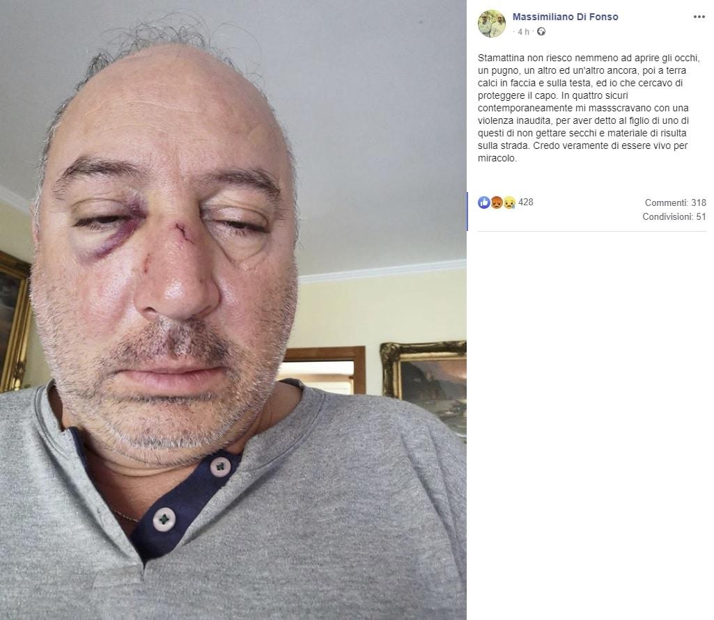 consigliere comunale picchiato