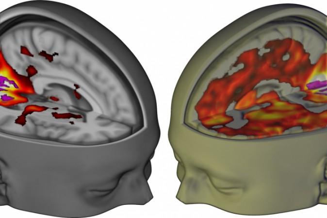 Gli effetti dell 39 lsd sul cervello scoperti per la prima - Sali da bagno droga effetti ...